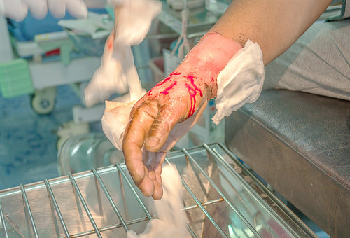 Dressing burned wound hand with gauze pad